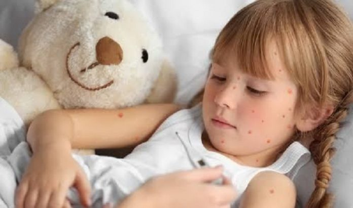 Cacar air sangat menular, maka anak yang terinfeksi harus istirahat di rumah untuk mencegah penyebaran virus./foto: afcurgentcareaberdeen.com.